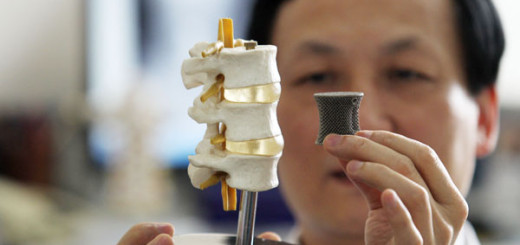 impresion-3D-vertebra