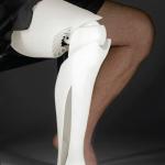 Protesis de pierna impresa en 3D